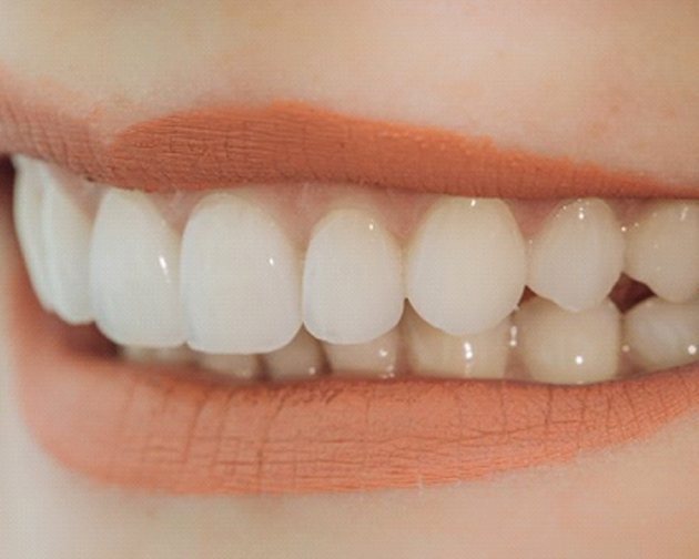 close up smile with dental bonding in Houston