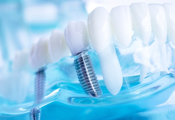 Dental implants, a treatment commonly used in full mouth reconstruction