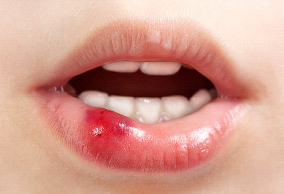 A person's bottom lip is reddened due to a soft tissue injury