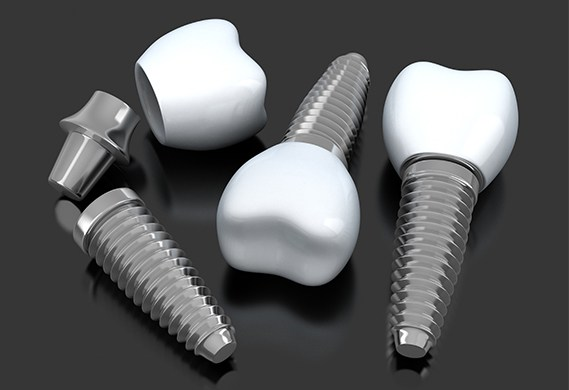 Animation of implant supported tooth replacement