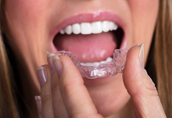 close shot of woman putting in invisalign