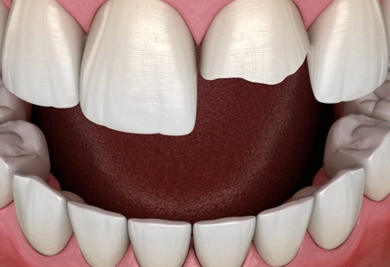 digital model of chipped front tooth