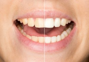 Learn more about KoR Whitening Houston vs Zoom Whitening.