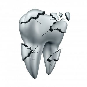 a damaged tooth