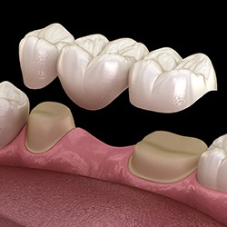 Image of a fixed dental bridge in Houston.