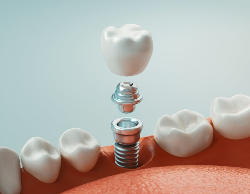 a digital image of a dental implant being placed in the lower arch of the mouth